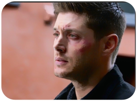 Dean after the fight