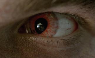Nate's soupy eye