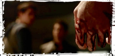 Bloody hand Teen Wolf Lies of Omission